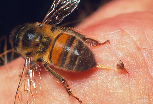 sting of a bee dragging from skin