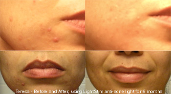 Aestheria Skin Care Photorejuvenation With Led Light A Non
