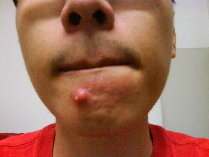 Mega Pimple