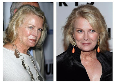 Brow lift with botox before and after, cosmetic surgeons ...  Celebrity Lower Blepharoplasty