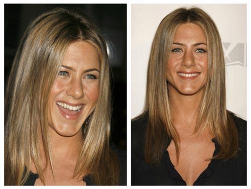 Plastic Surgery Before After: Jennifer Aniston Nose Job