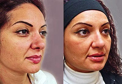 Plastic Surgery Before And After Rhinoplasty Picture