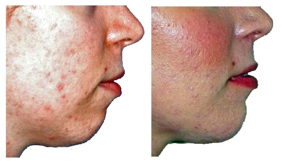 Plastic Surgery Before And After Chin Augmentation Photos