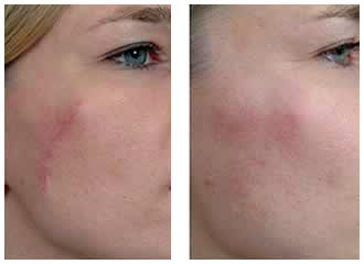 Plastic surgery facial scars