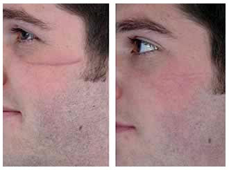Plastic Surgery Before And After Scar Removal Before And