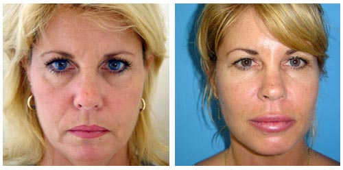 Plastic Surgery Before And After Mesotherapy Photos