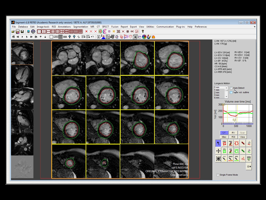 Software to view mri cts on mac os x 2