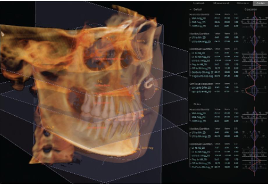 Ortodontia Contempor 194 Nea Aplica 231 245 Es Pr 225 Ticas Da