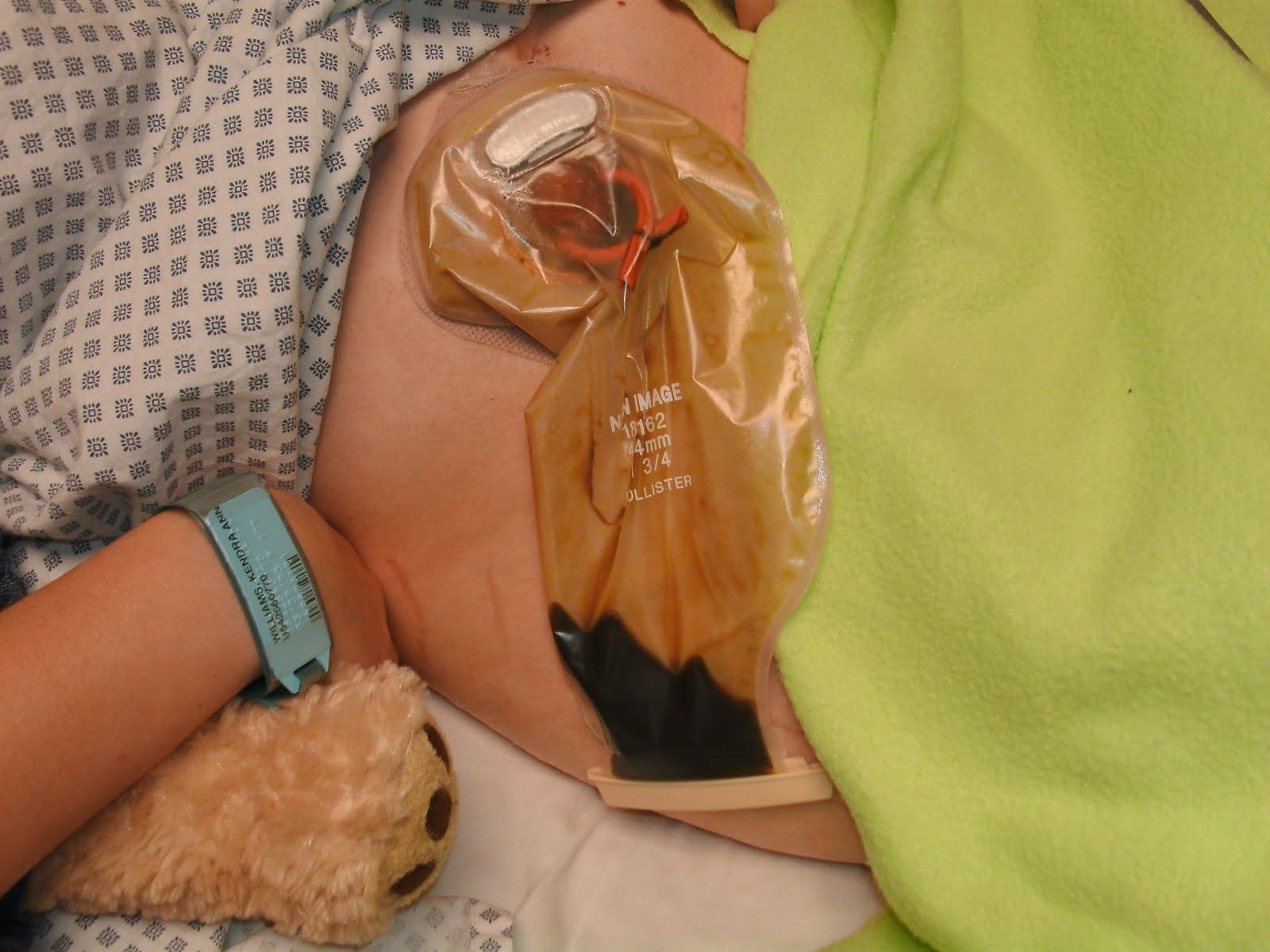 Kendra S Ulcerative Colitis Story Stoma Bag