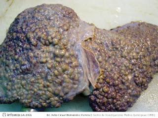 imagenes de higado con cirrosis hepatica
