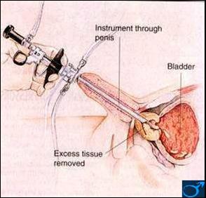 Wie verlängere ich meinen penis