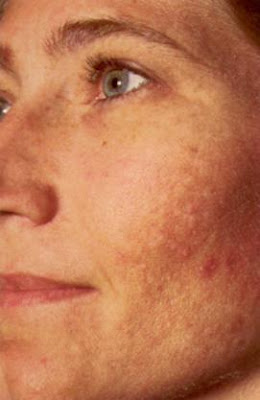 Anti Aging Treatments: Skin Discoloration - Avoid Age Or ...