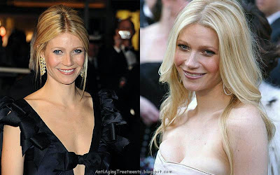 Gwyneth Paltrow before and after pictures?