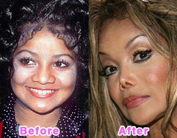 Weird 16 Worst Celebrity Plastic Surgery Disaster
