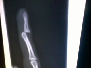 Rob Cooper's disclocated finger x-ray