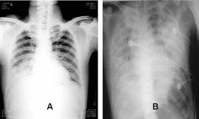 Resultado de imagem para virus h1n1 e h5n1 sintomas clinicos