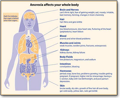 anorexia nervosa definition