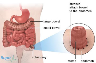 ileostomía convencional o de brooke