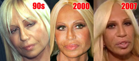 Donatella Versace before and after plastic surgery over the years (image hosted by http://www.plasticcelebritysurgery.com)