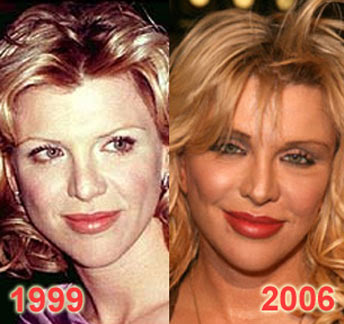 Courtney Love lip injections? (image hosted by plasticsurgerycelebrity.com)