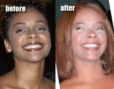 Lark Voorhies Before And After Plastic Surgery