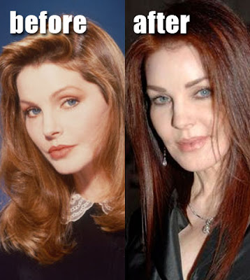 New Celebrity Buzz Priscilla Presley Before And After Bad