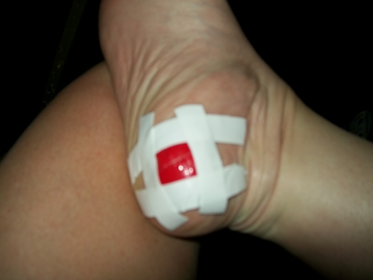 Some people try treating their Plantar wart by covering it with duct tape.  Image Source: ColleensPlantarWart.Blogspot.com - Seek & Destroy: How To Identify, Treat, And Eliminate Stubborn