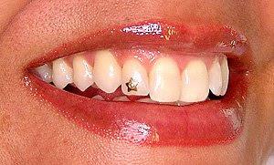 piercing estrela no dente