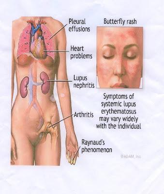 ASUHAN KEPERAWATAN SYSTEMICS LUPUS ERYTHEMATOSUS (SLE)