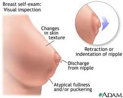 Are Sensitive Nipples A Sign Of Pregnancy 15