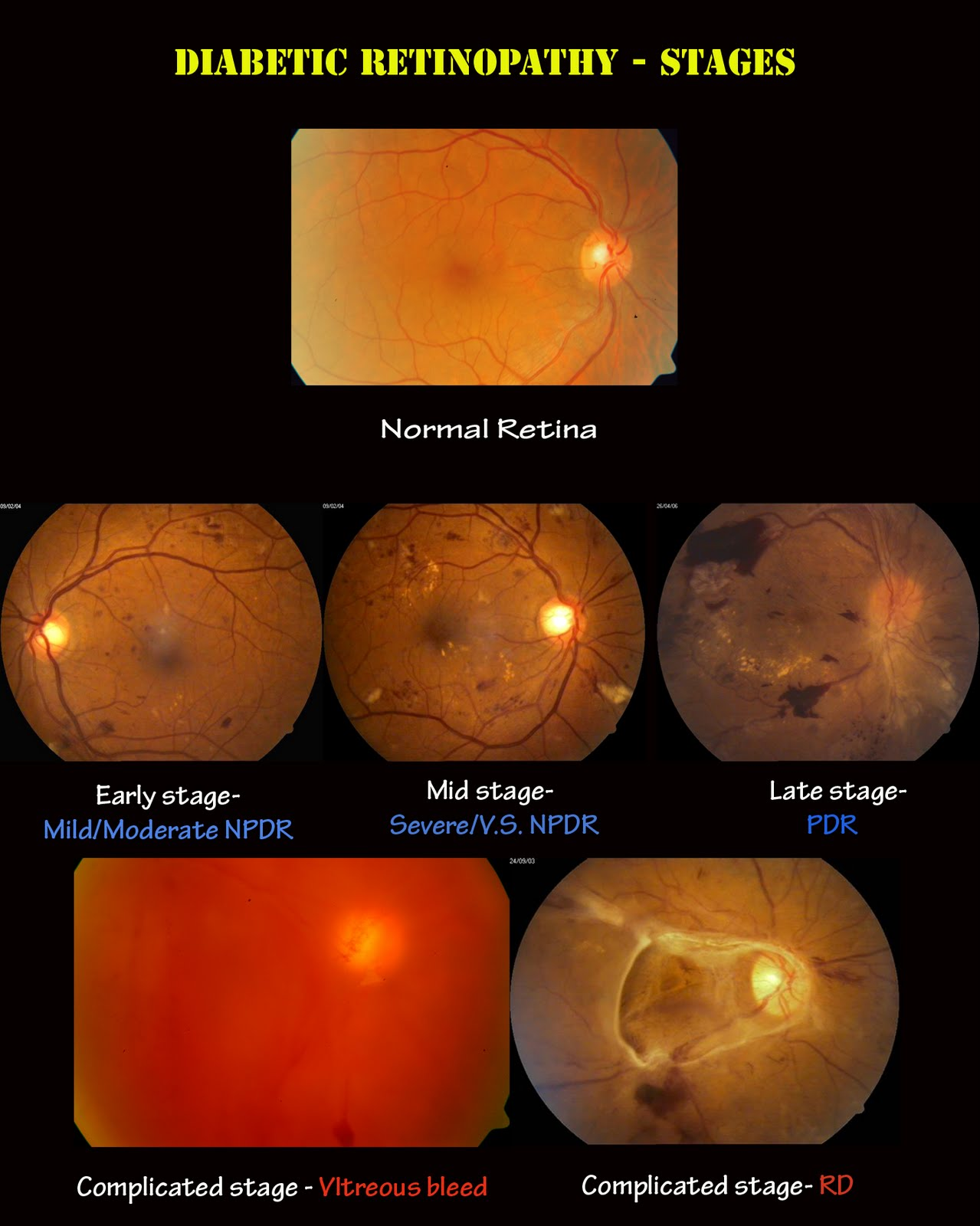 diabetic retinopathy, DIABETIC RETINOPATHY, Optometrist in Petaling Jaya   Optical Shop