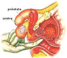 hombre de tamaño de próstata 60 años