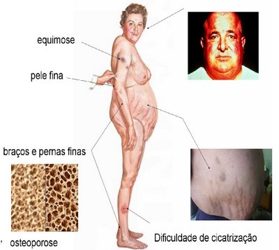 https://www.abcdasaude.com.br/endocrinologia/sindrome-de-cushing