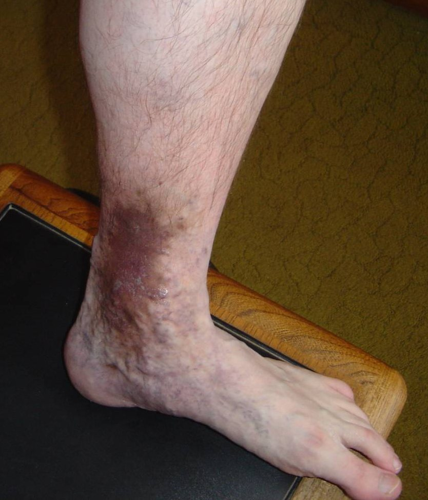 Skin MD Natural Shielding Lotion a different sore leg view