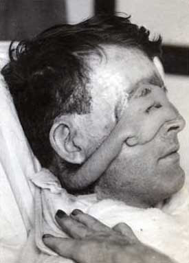 Nothing To Do With Arbroath: Pictures of first person to ...  Walter Yeo Skin Graft
