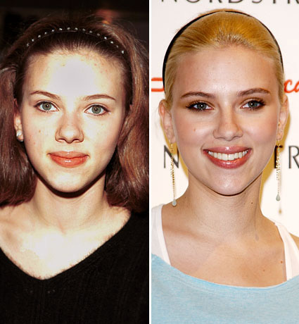 Celebs Before and After nose plastic surgery