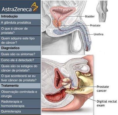 área intensa de próstata