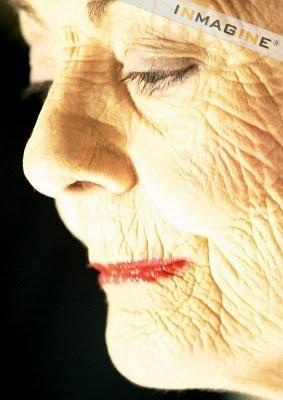 25 Years Old = Wrinkles :(