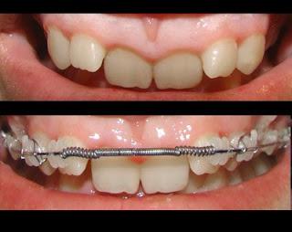 slabesti cu aparat dentar corint pierdere avansată în greutate corinth ms