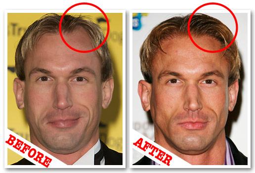 Doyounoah Hair Transplants For Tv Doctor