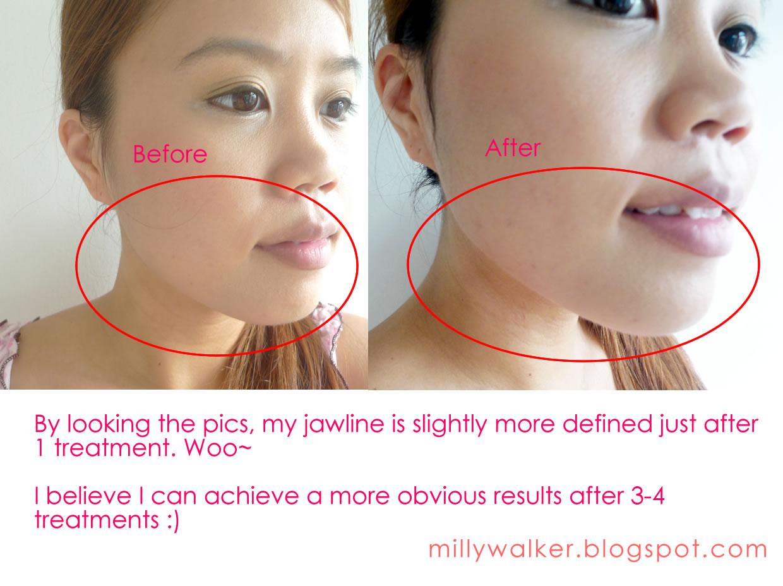 A quick sticky facial 9