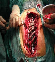 Desvios e deformidades ósseas e articulares em crianças com paralisia cerebral 5