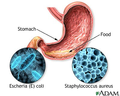 Lactose Intolerance After Food Poisoning