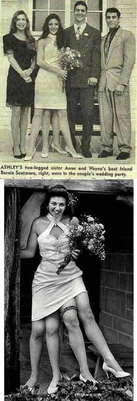 foto orang berkaki empatgambargambar aneh