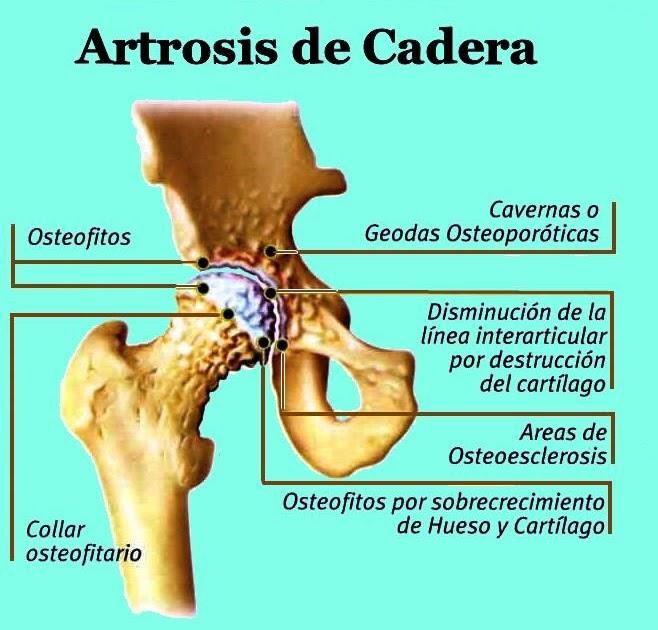 El blog de Francisco Gilo: Artrosis de cadera