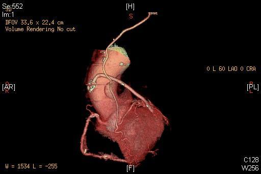 PCIと64列MDCTの日々 Our daily Coronary i...  冠動脈バイパス後