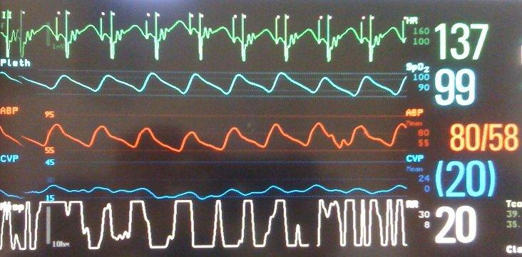 ICU: Monitor, A-pace, AV-pace, CVP trace - Pedi cardiology