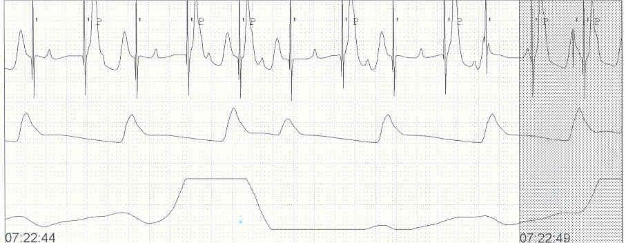 Pedi cardiology: November 2010