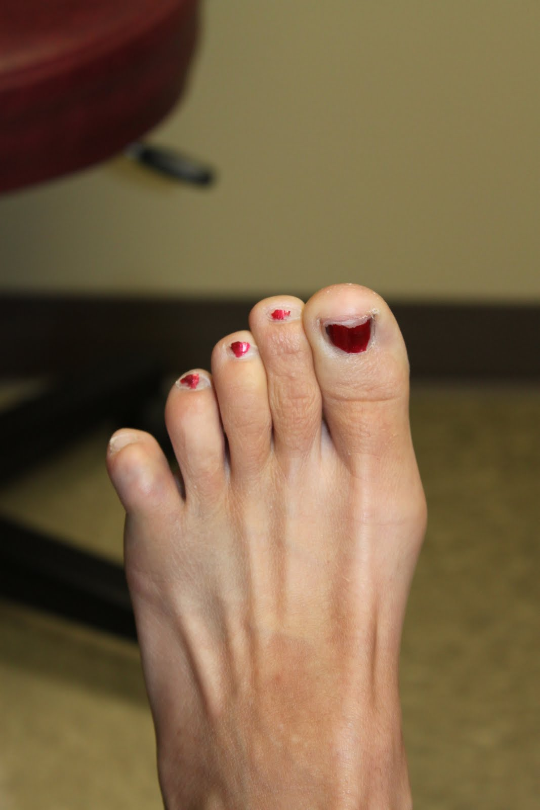 this funky junky: broken pinkie toe! what can you do?