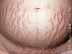 Perut Obesitas: Berat yang Anda Pakai Bergantung pada Jenis Tubuh Anda!